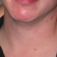 Treatment for cystic acne on chin