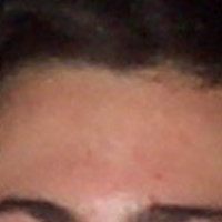 Forehead Skin Picture November 1999