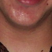 Chin Skin Picture - July 2000