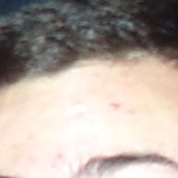 Forehead Skin Picture - September 2000