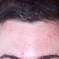 Forehead Skin Picture - January 2001
