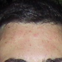 Forehead Skin Picture - April 2002