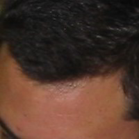 Forehead Skin Picture - July 2002