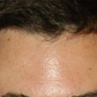 Forehead Skin Picture - January 2003