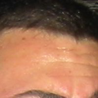 Forehead Skin Picture - May 2003