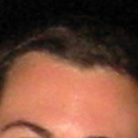 Forehead Skin Picture - January 4th 2004