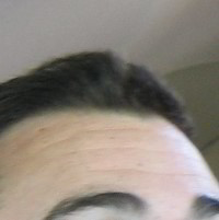 Forehead Skin Picture - October 2004