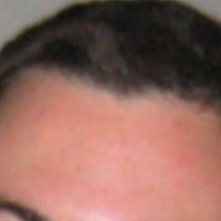 Forehead Skin Picture - February 2004