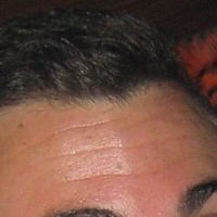 Forehead Skin Picture - August 2004