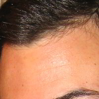 Forehead Skin Picture - April 2005