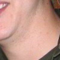Neck Skin Picture - September 2005